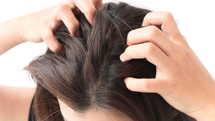 4 myths about lice, get to know them!!